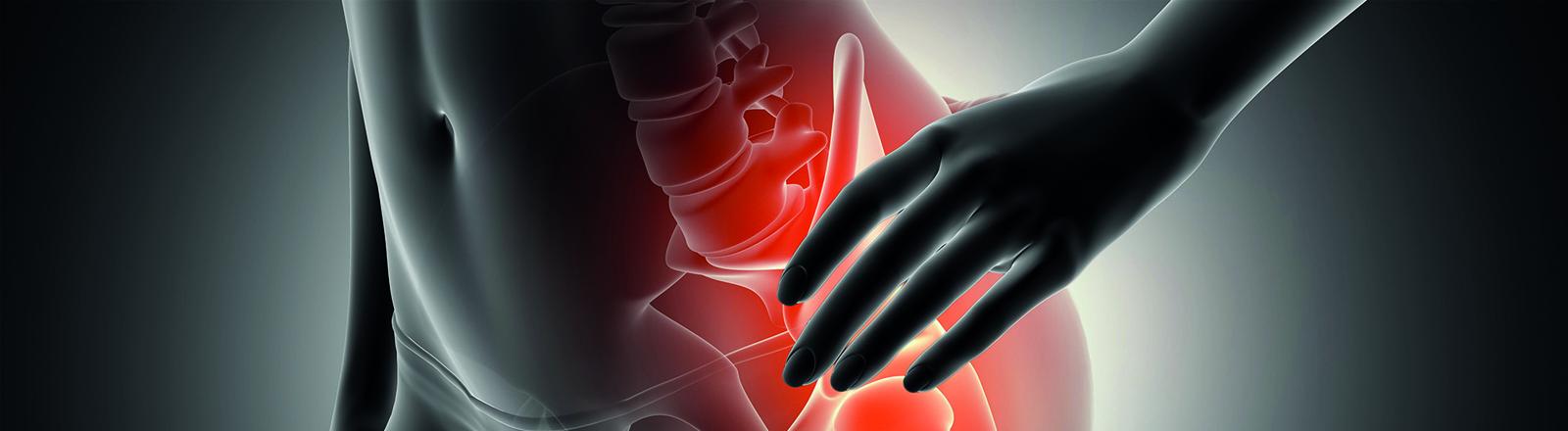 Ondas de choque en tratamiento de trocanteritis crónica