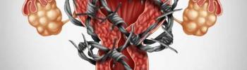 Endometriosis una visión actual