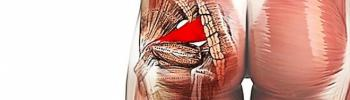 Qué es, causas, tratamiento y recomendaciones del Síndrome Piramidal