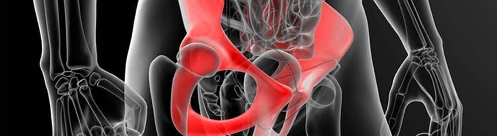 osteopatía de pubis o pubalgia